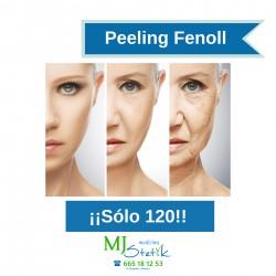 Peeling Fenol
